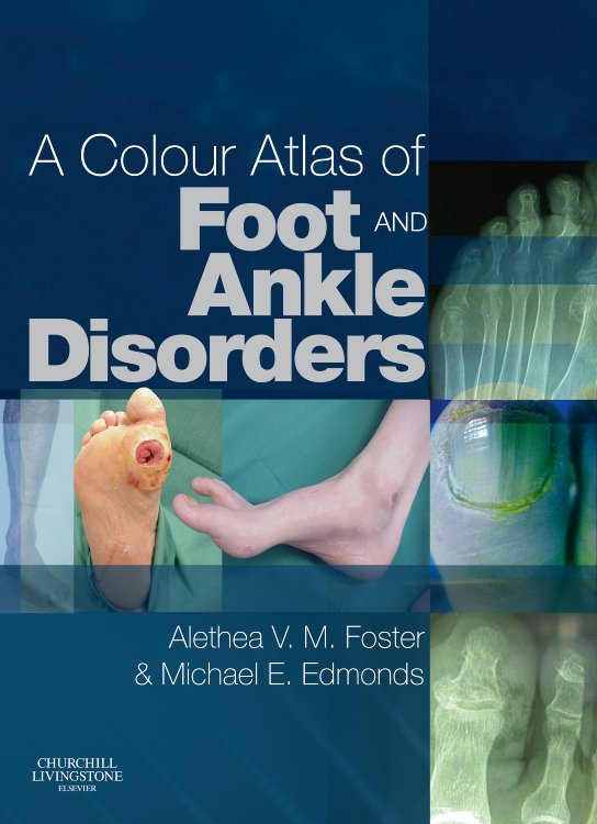 COLOUR ATLAS OF FOOT AND ANKLE DISORD