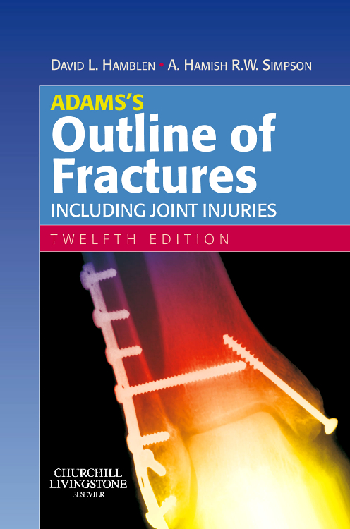 Adams's Outline of Fractures