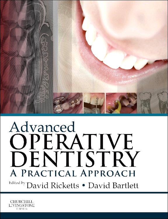 ADVANCED OPERATIVE DENTISTRY,