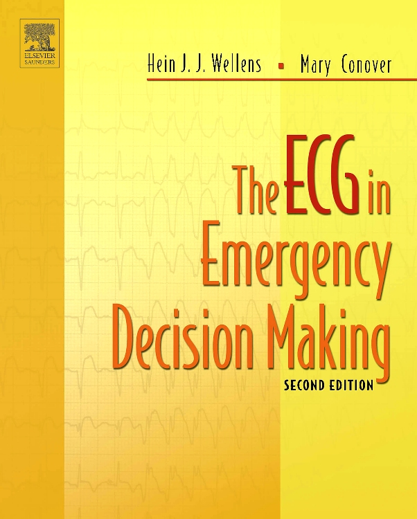 The ECG in Emergency Decision Making