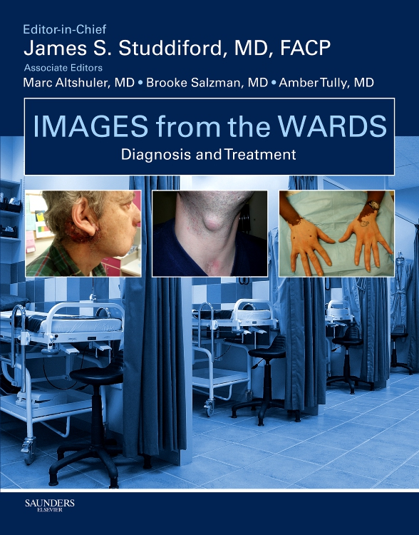 Images from the Wards: Diagnosis and Treatment