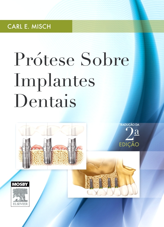 Prótese sobre Implantes Dentais